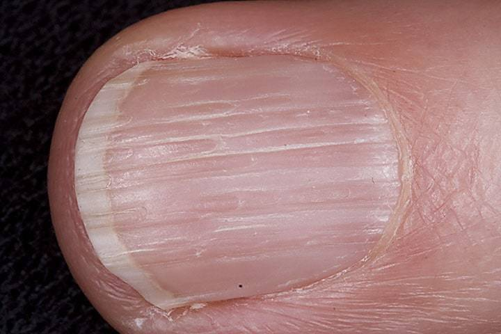 Nail Ridges: Causes, Types & How to Cure – NailDesignCode