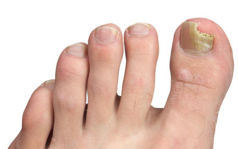 Feet Nail Fungus