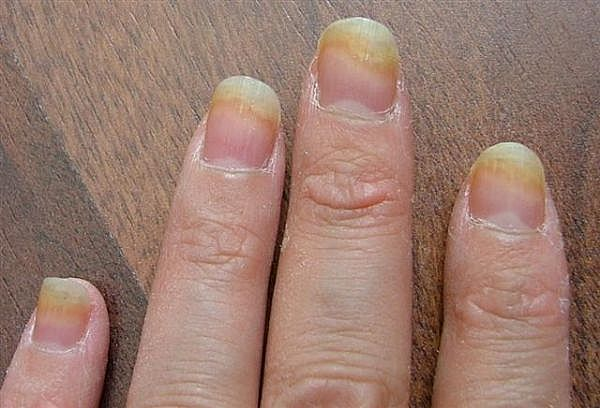 Nail Fungi On Finger Nails