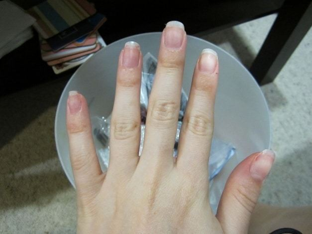 Nails After The Removal
