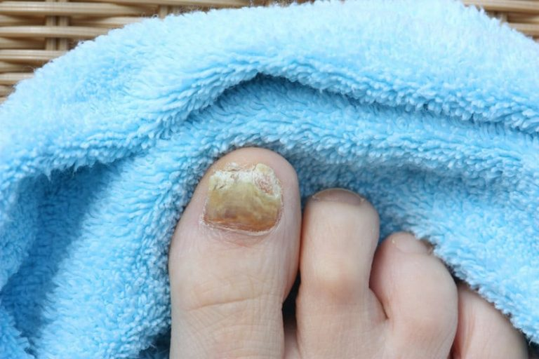 Causes of Nail Fungus: 7 Bad Habits You Must Disown