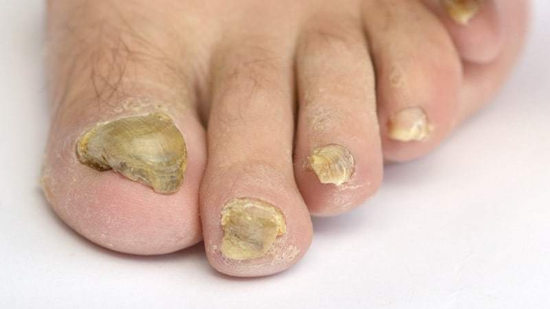 toenail fungus infection causes