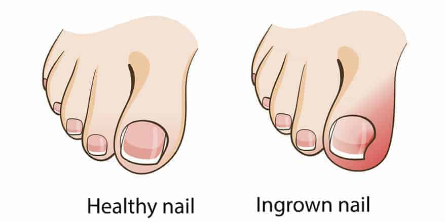 Ingrown Nail: What Is It And What Are The Remedies?