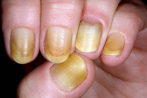 why are my nails yellow