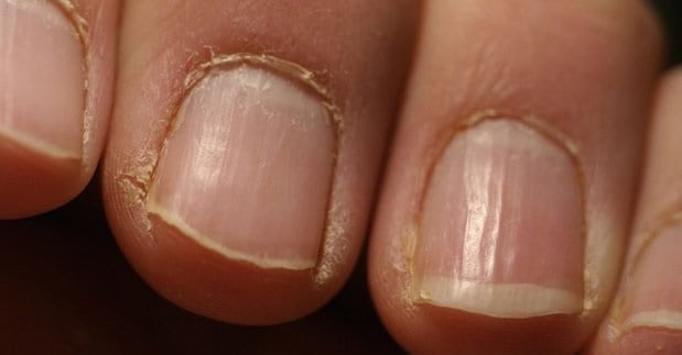 What Does Cuticle Oil Do
