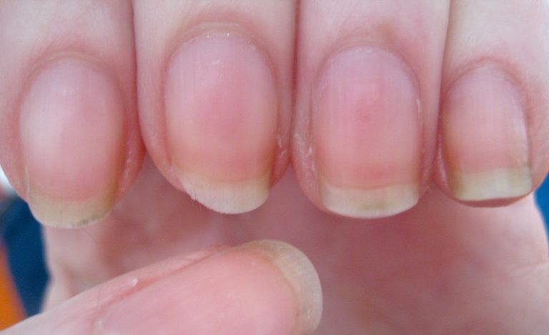 10 Most Common Nail Diseases And Disorders