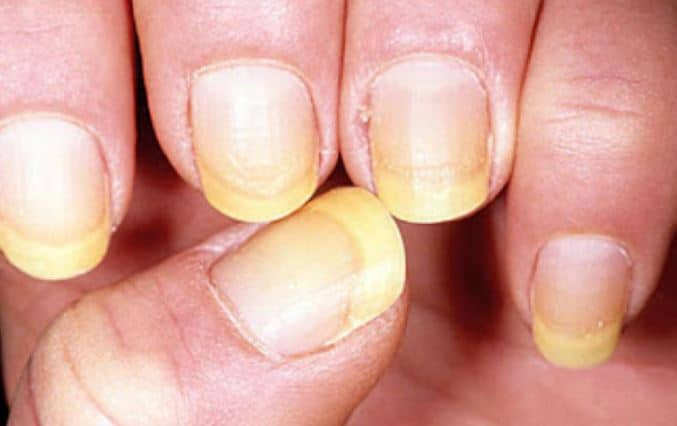 Natural Remedies For White Nails