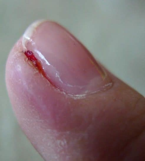 Infected Cuticles: Symptoms, Causes & Treatments