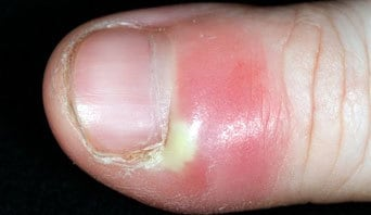 Chronic infected cuticles