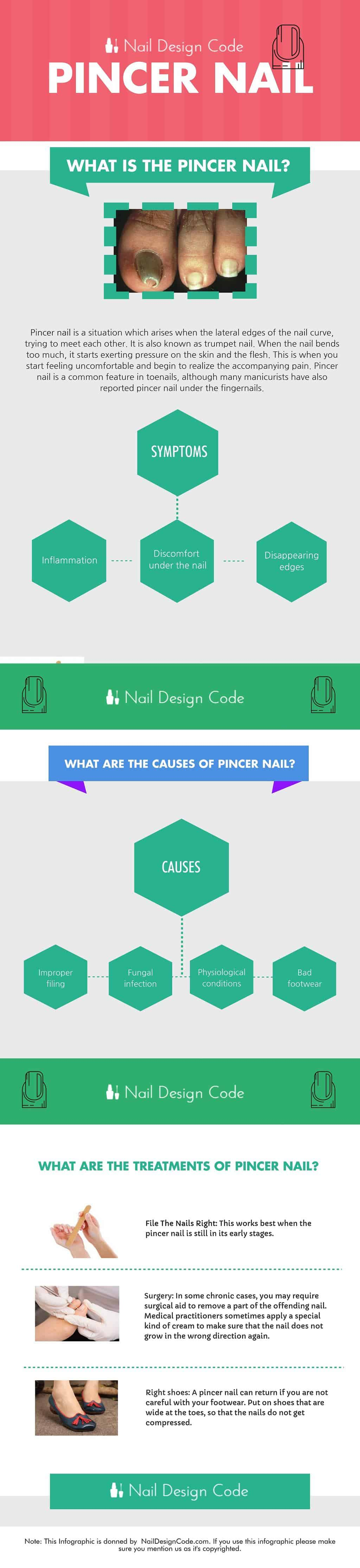Pincer nail infographic