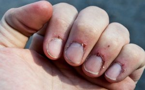 Infected Cuticles