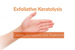 exfoliative keratolysis
