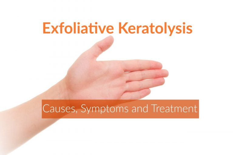 Exfoliative Keratolysis (Peeling Skin): Causes & Home Remedies