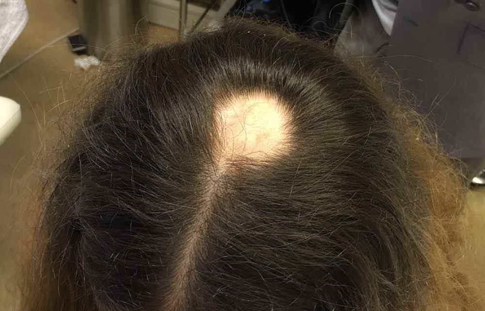 Alopecia Areata Types Causes How It Affects Hair Amp Nail