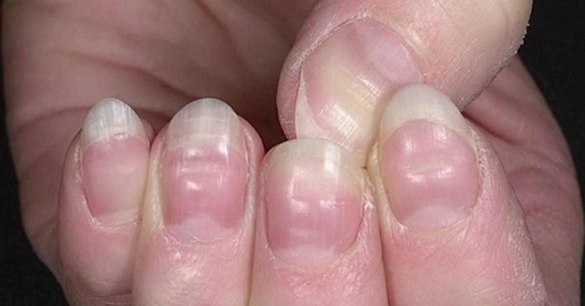 beau lines on fingernails