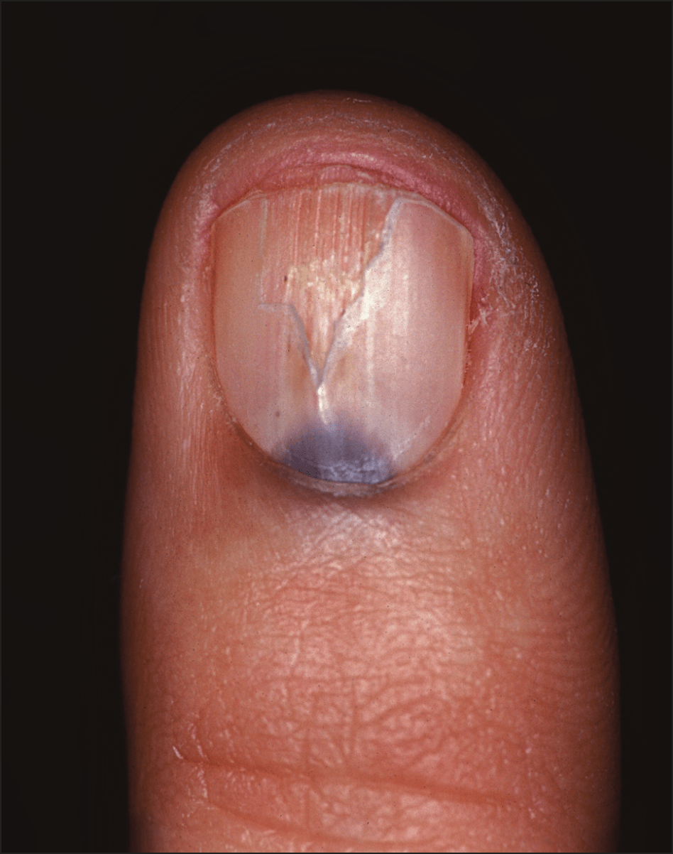 Changes in Colour of lunula