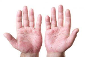 Eczema on fingers