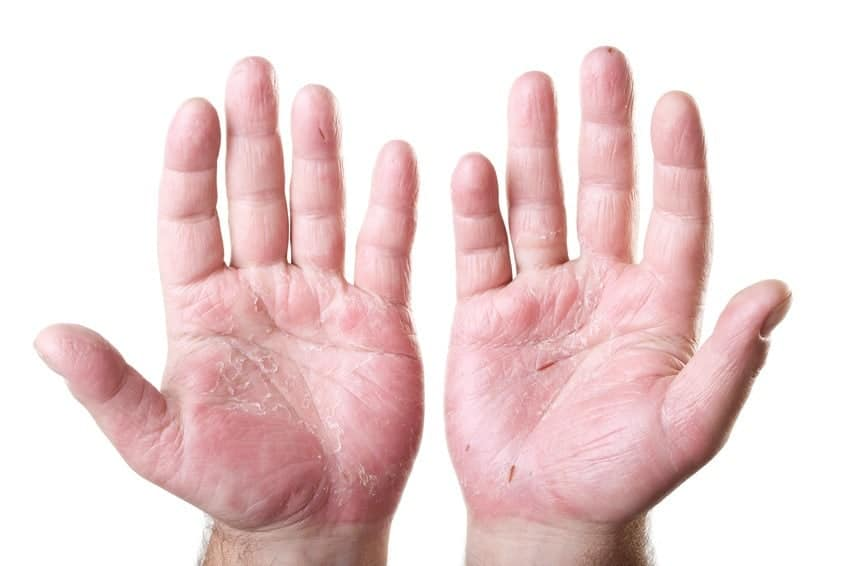 Eczema on your Fingers