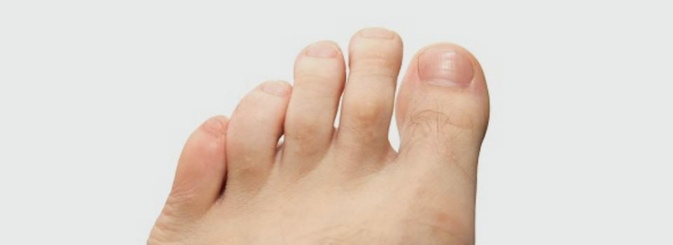 Symptoms of Hammer Toe