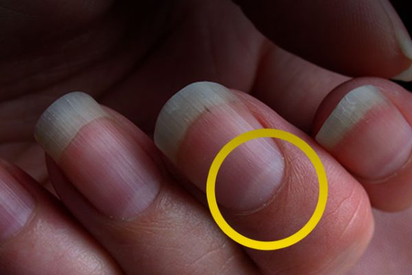 lunula of nails