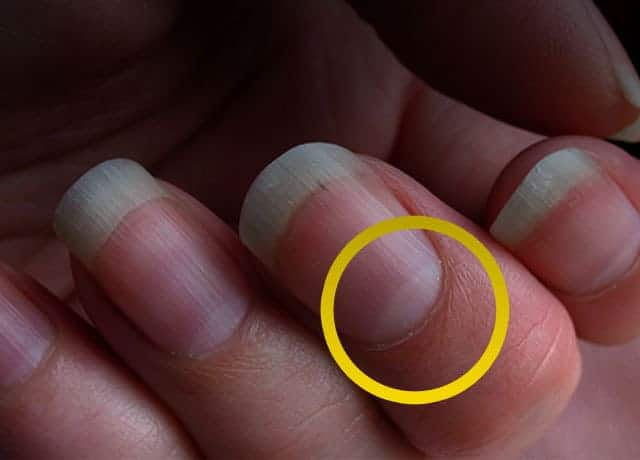 Lunula of Nails: What It Says About Your Health?