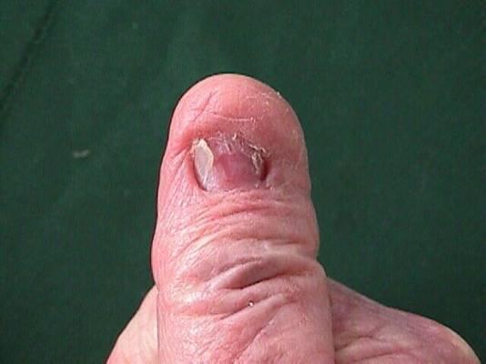 Nail Abnormalities