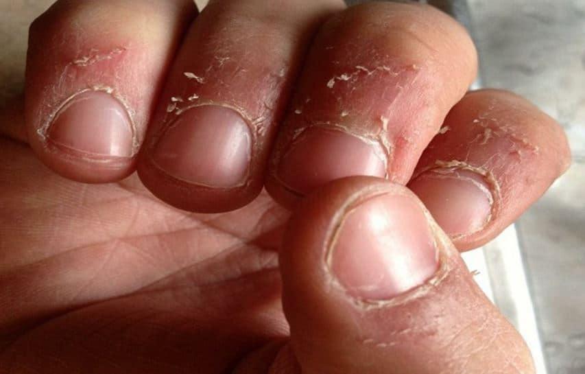 Skin Peeling Near Fingernails