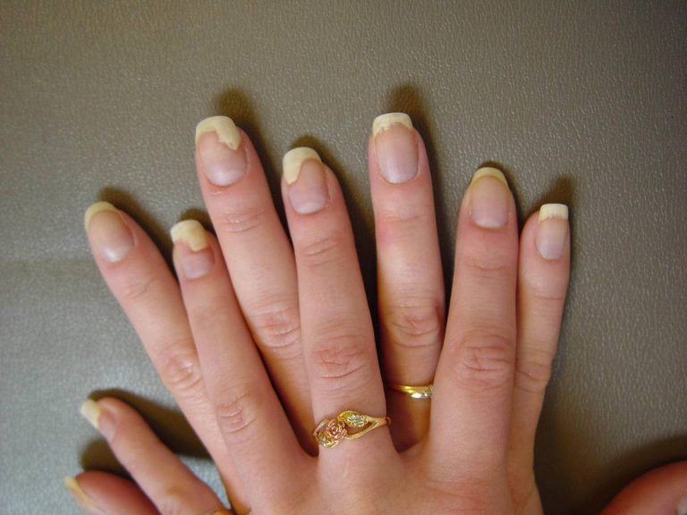 Nail Psoriasis: Symptoms, Causes & Treatments