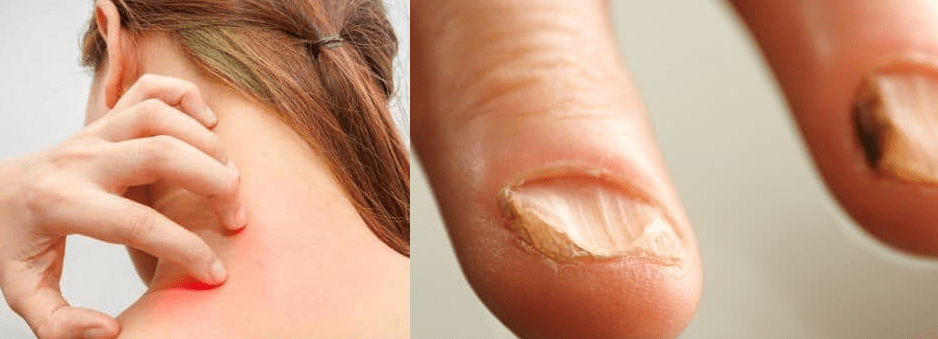 Symptoms of Candidiasis of Skin & Nails