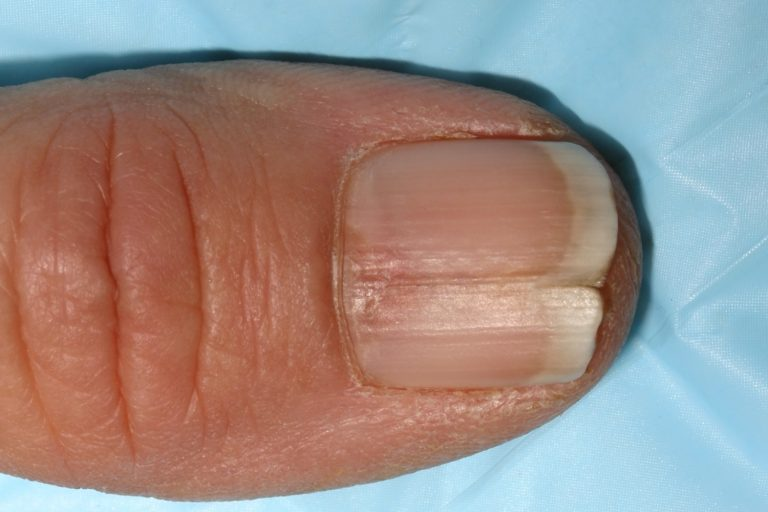 Split Fingernails (Onychoschizia): Symptoms, Causes & Remedies