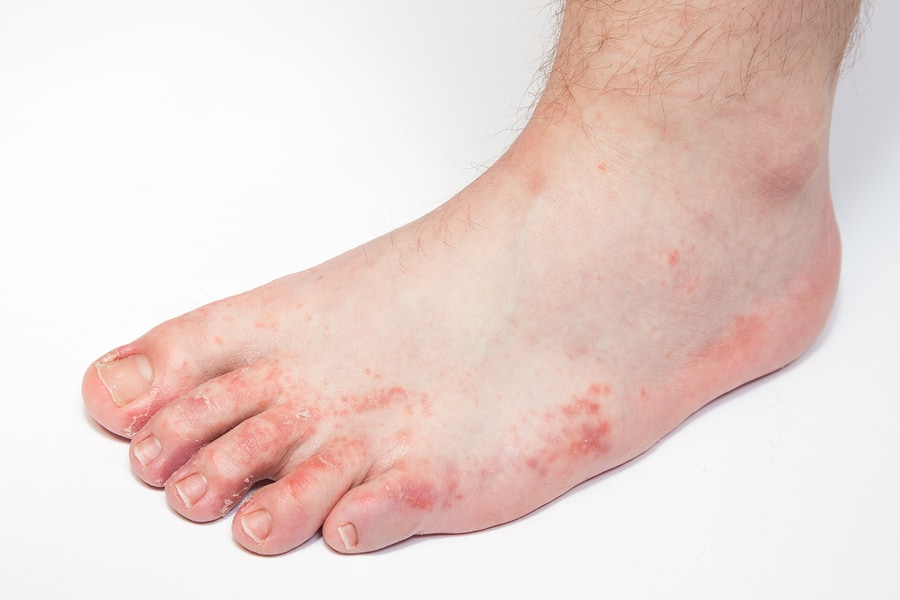 Causes of Athlete's Foot