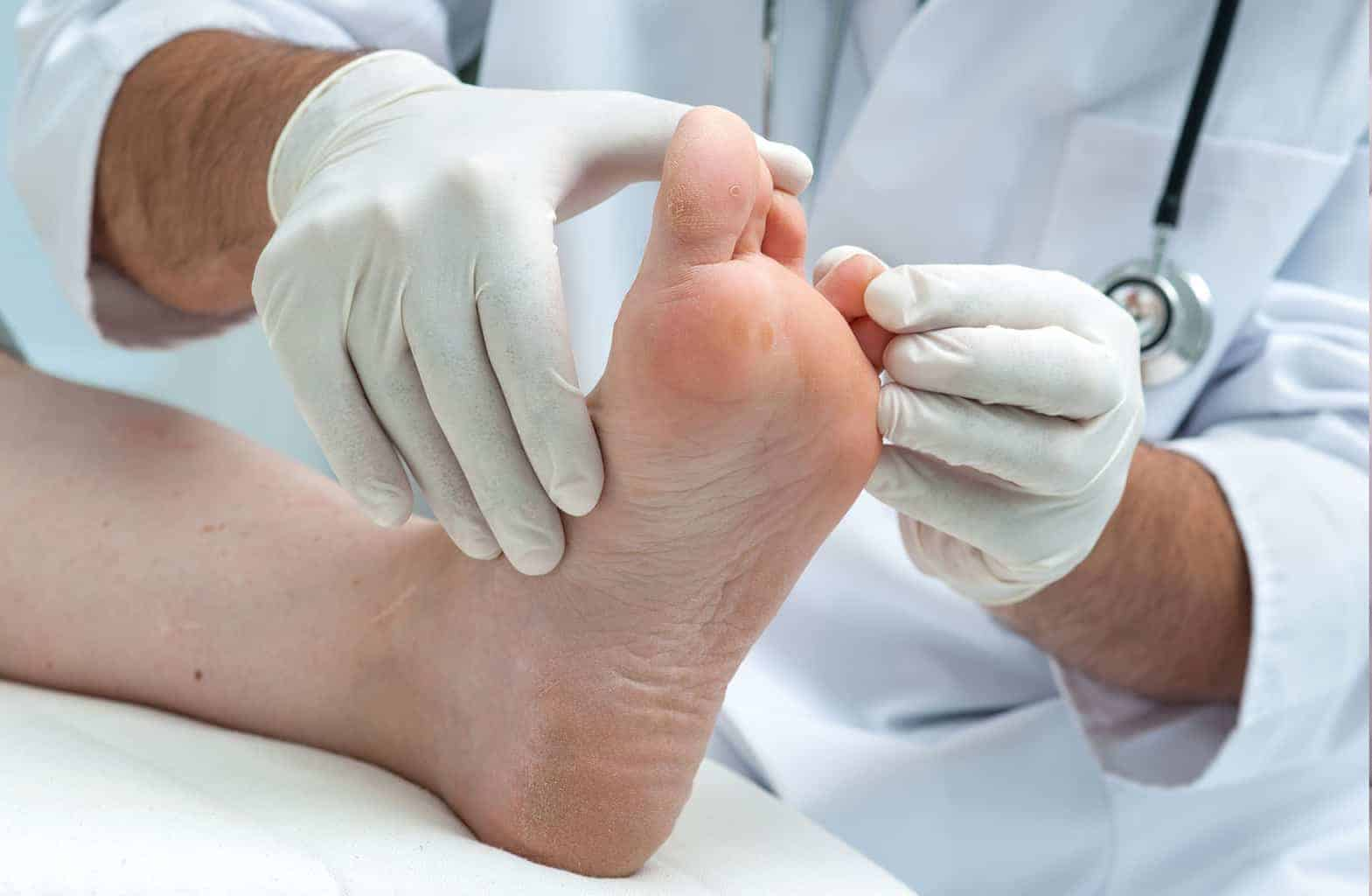 Treatment Options for Athlete's Foot
