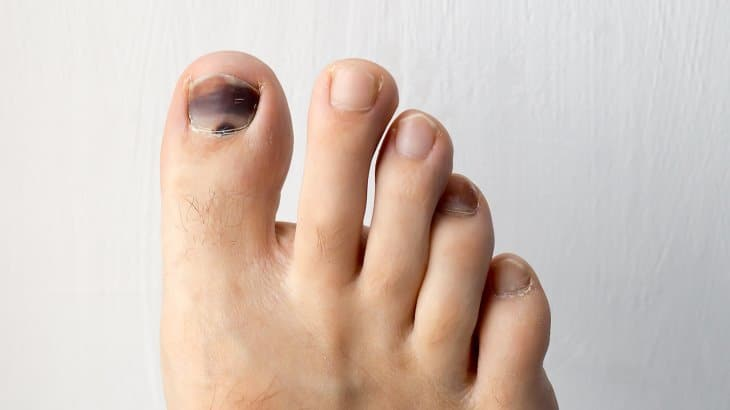 toenail turning black