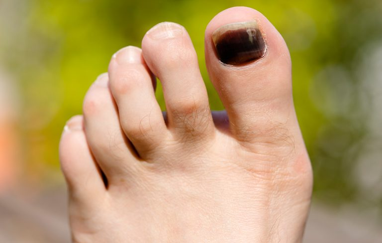 Black Spot on Toenails: Symptoms, Causes & Treatments