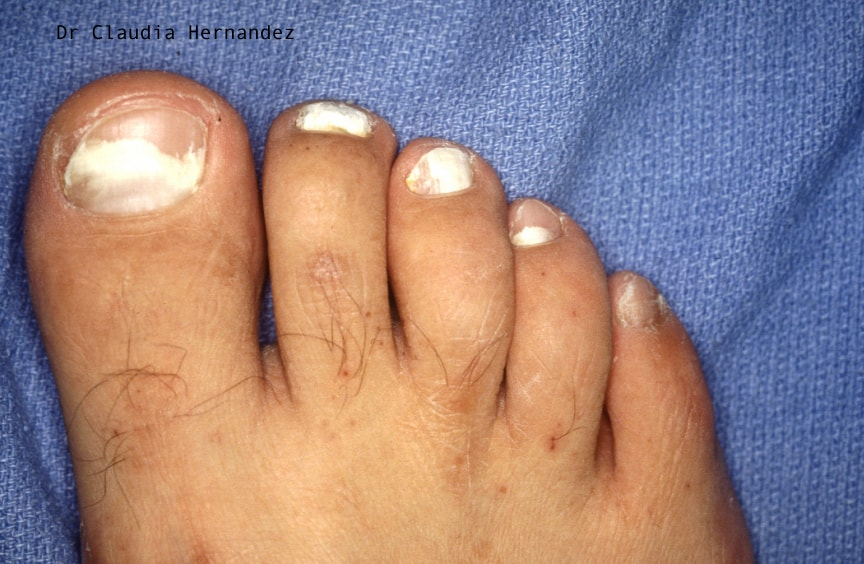 white superficial onychomycosis