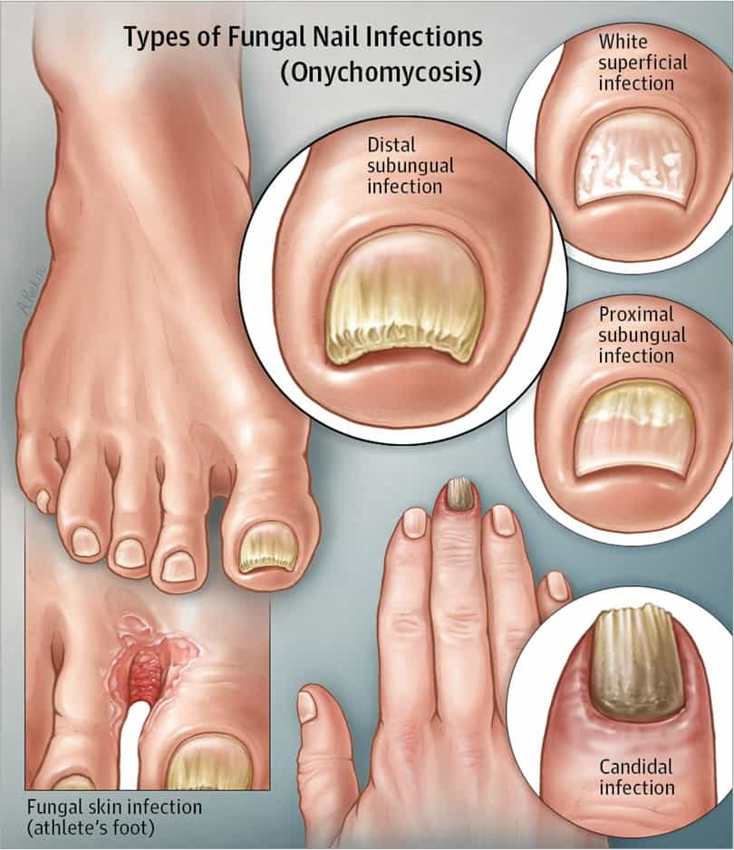 types of White Superficial Onychomycosis