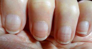 Beau's Line on Fingernails