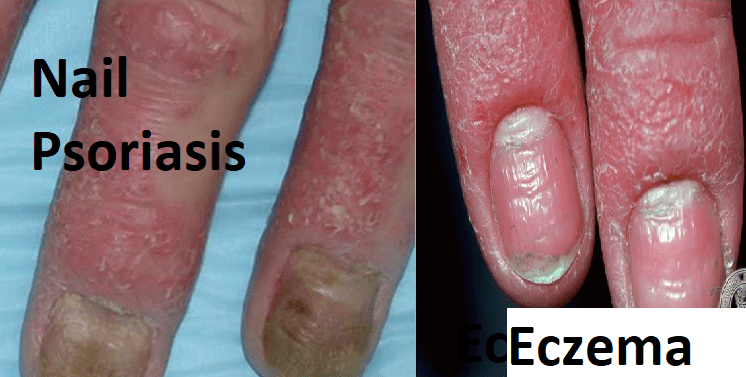 difference between Nail Psoriasis & eczema