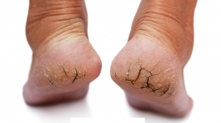 Dry Skin on Feet: Causes & How to Get Rid of It?