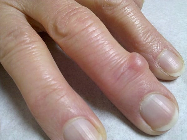Mucous Cyst on The Fingers: Symptoms & Treatment