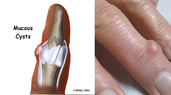 nail cyst
