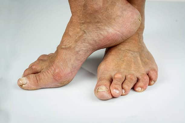 dry skin on feet causes because of ageing