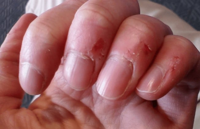 Skin Peeling on Fingers Near Nails: Causes and Remedies