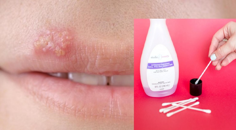 Banish Cold Sore with Nail Polish Remover: Your Healing Agent!