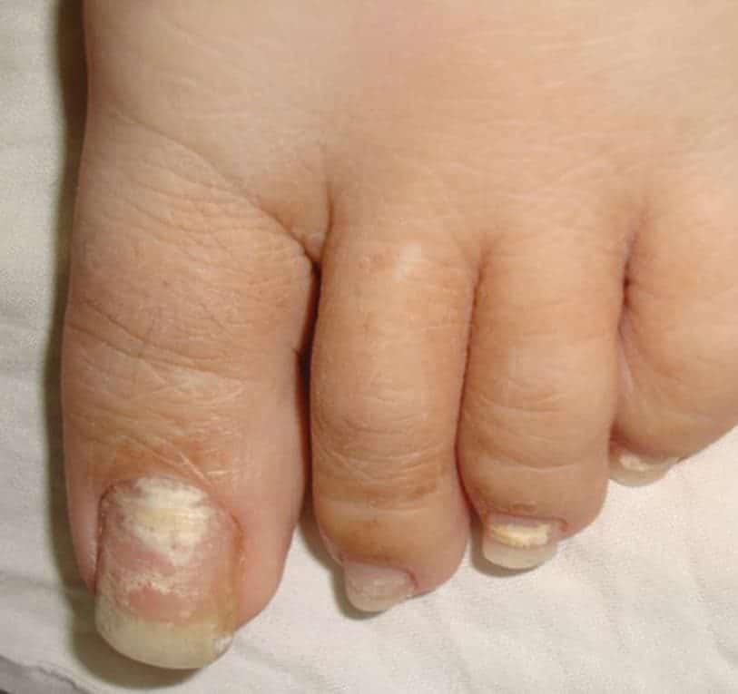 White Superficial Onychomycosis: Types, Symptoms, Causes & Treatment