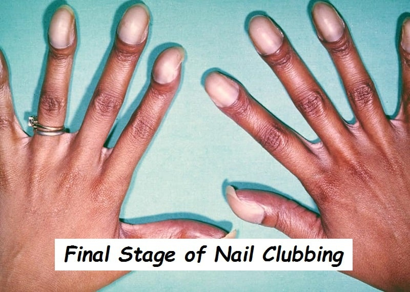 Stages of Nail Clubbing