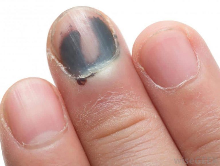 Melanonychia on Nails: Symptoms, Causes & Treatment