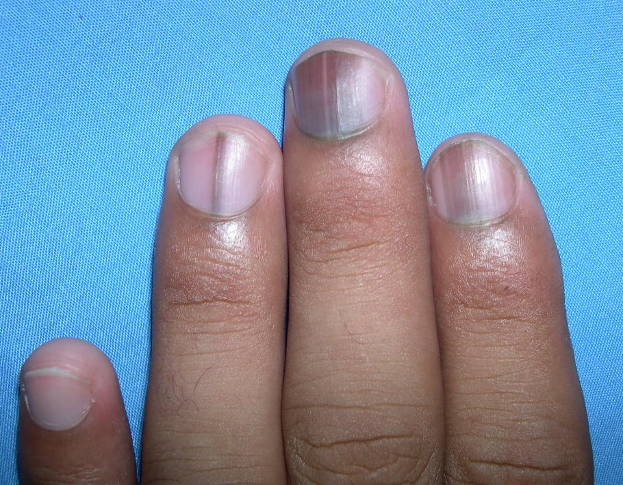 Melanonychia on nails
