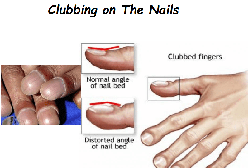 Signs of Nail Clubbing