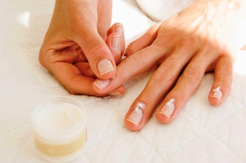 repairing damaged nails
